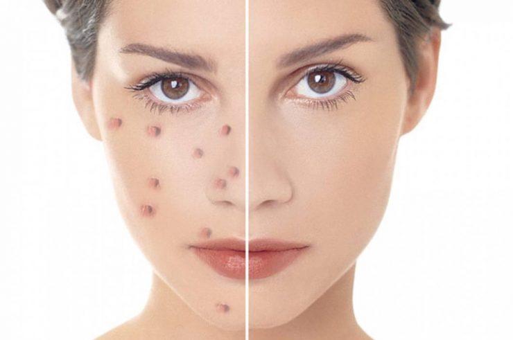Заговор на чистую кожу лица от прыщей и черных точек